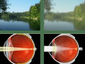 Het gevolg van cataract in je oog