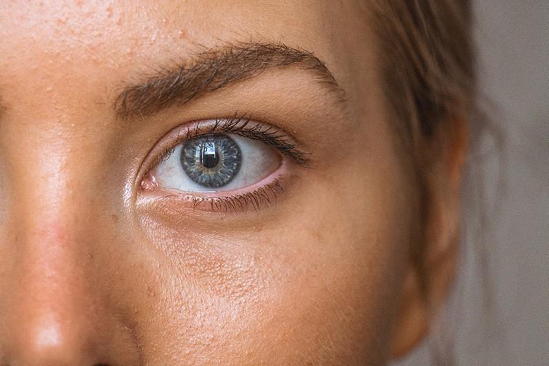 ogen en oogproblemen